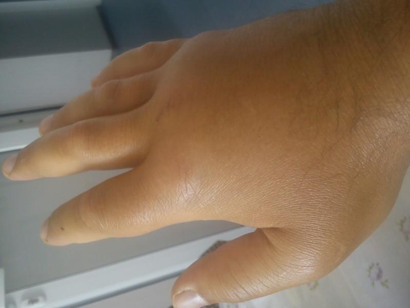 Опухла рука как лечить в домашних условиях 730